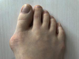外反母趾はオーダーメイドでインソール改善するかも!?オーダーメイドインソールと外反母趾