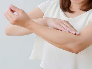 湿疹の跡が消えない!!効果的なケアと綺麗な隠し方