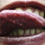 口内炎が舌の先にできる原因と薬や治療法について